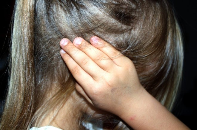 girl child hidden face in hair bruised hands over ears.